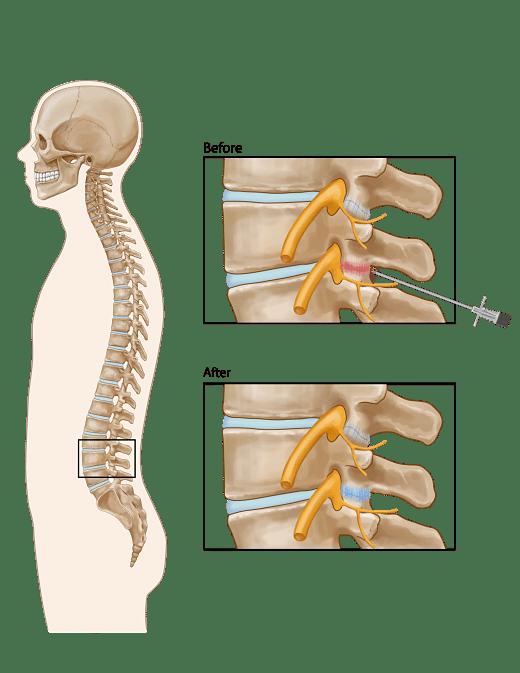 Lumbar_Facet_Joint_Injection_opt