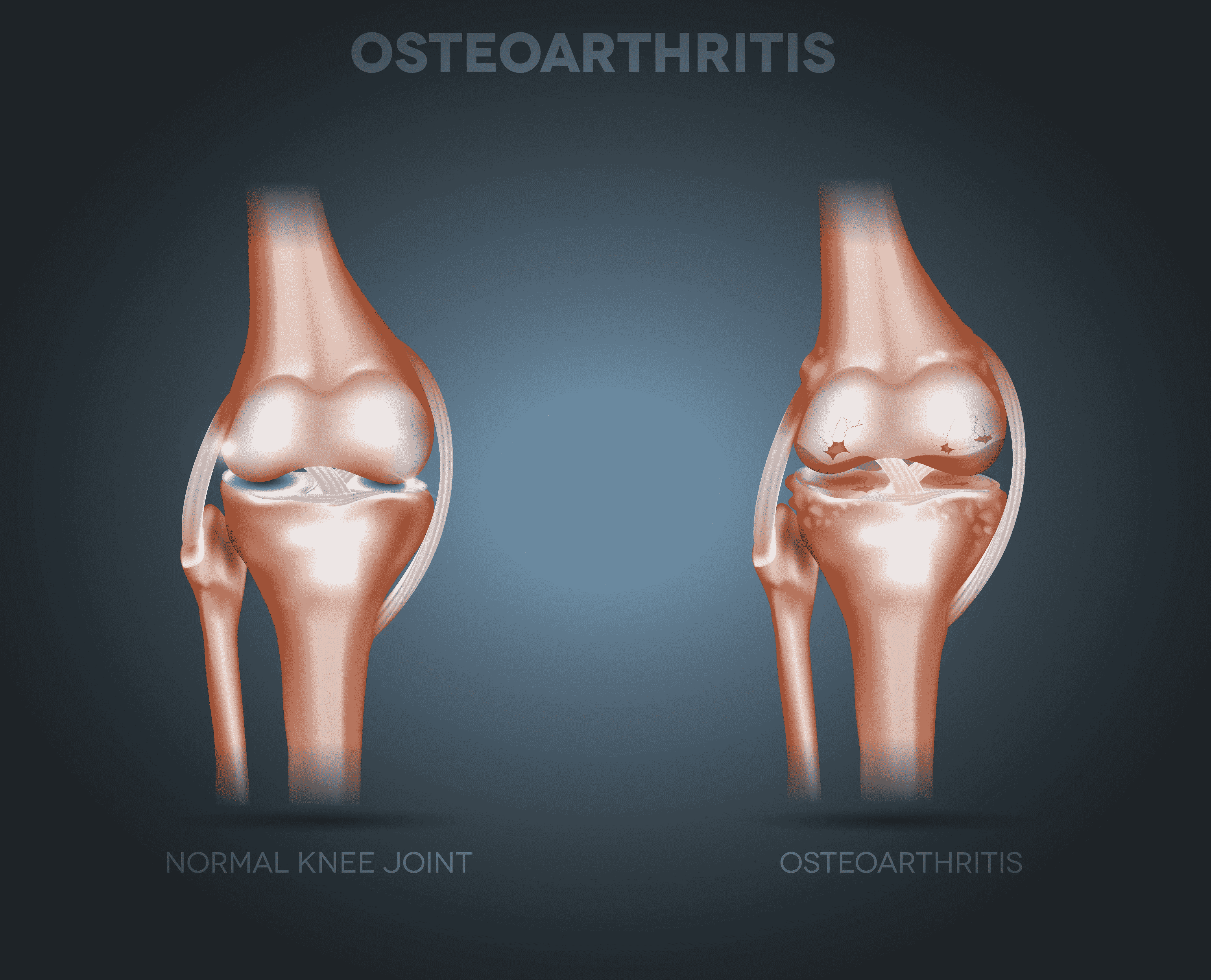 osteoarthritis_in_knee